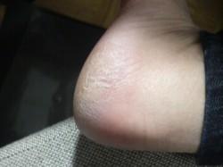 足のウィルスいぼ